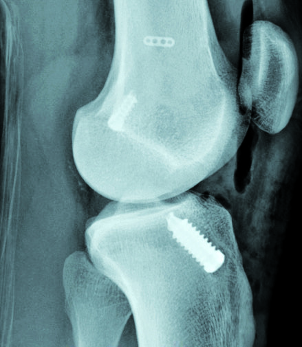 X-ray of one of the implanted new screws, in position, securing the reconstructed tendon to the bone.